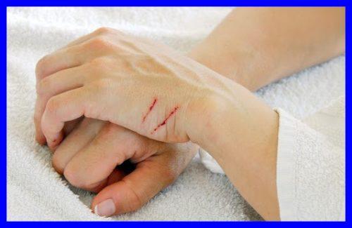 猫,引っ掻き傷