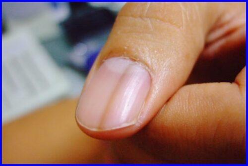 爪,黒い線